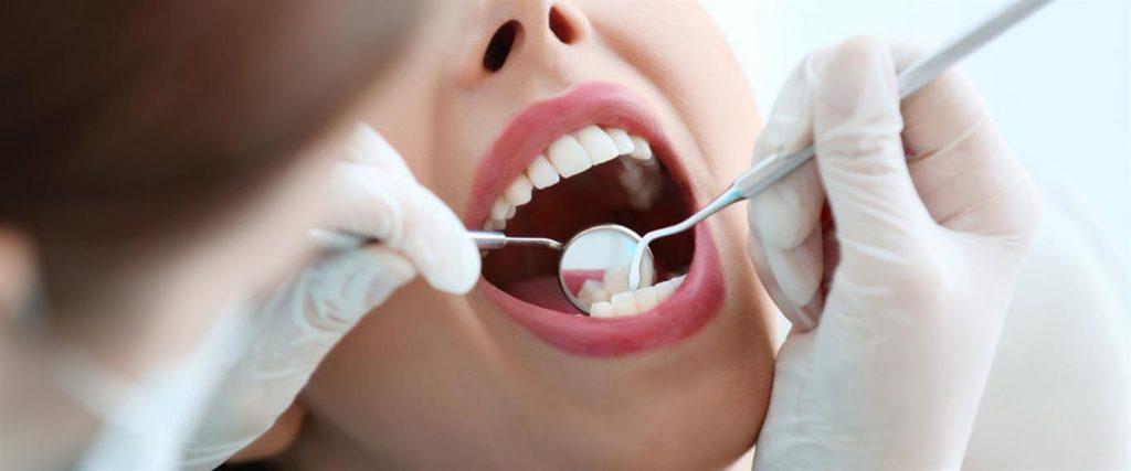 Diş Beyazlatma Tedavisi Yaptırmak Neden Önemlidir
